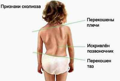 Тест для выявления нарушений осанки у детей