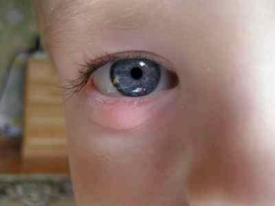 Комаровский халязион у ребенка