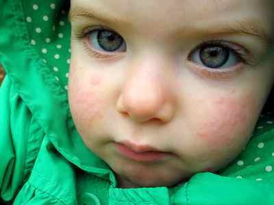 Острая крапивница у детей комаровский