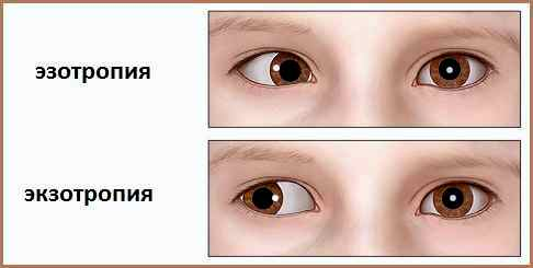 Операции по восстановлению зрения в кемерово