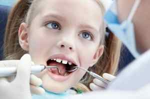 Флюороз зубов у детей реферат Консультация стоматолога Сборник  Флюороз зубов у детей реферат