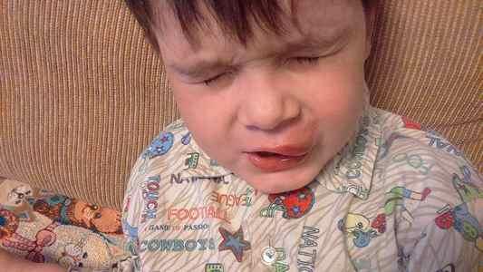 Ребенок разбил сильно губу