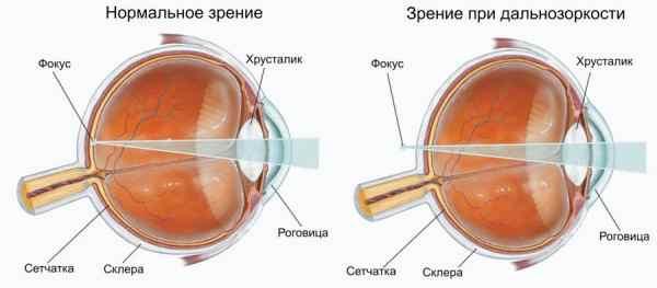 Глазной центр зрения доктора шаимовой челябинск