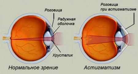 Метод восстановления зрения без