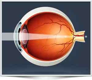 Астигматизм глаза ребенка