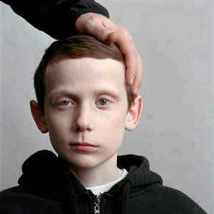 Фото детей с перекошенным лицом 74
