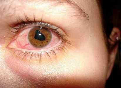 Реактивный артрит у детей диагностика Педиатр разъясняет ...