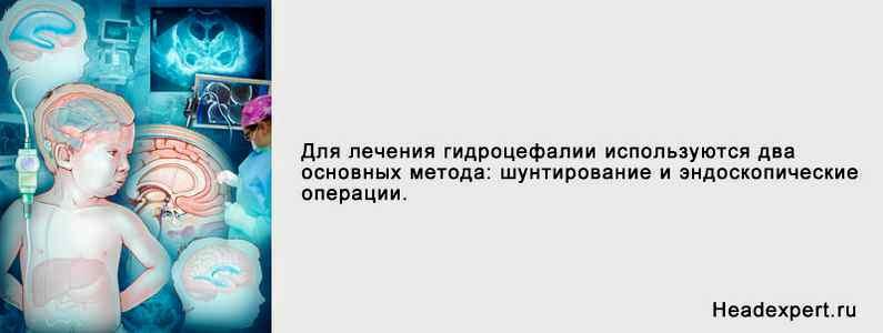 Псориаз лечение в санаториях россии