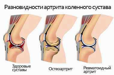 Как эффективно лечить артрит коленного сустава