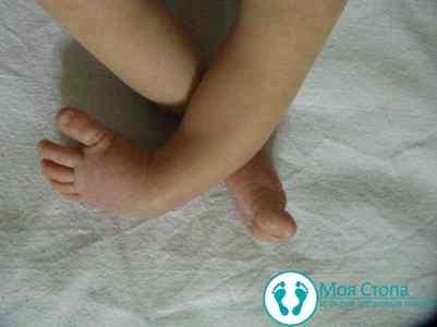 Как вылечить косолапие у ребенка 2 лет