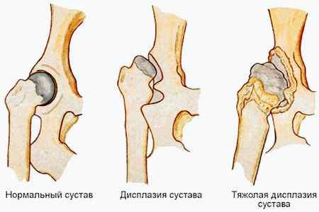Лечебная физкультура и массаж при остеохондрозе шейного отдела