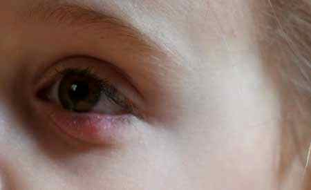 Шишка под глазом у ребенка. Шишка у ребенка. Zdorovyj 32