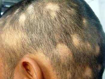 Волосы на голове выпадают у меня псориаз
